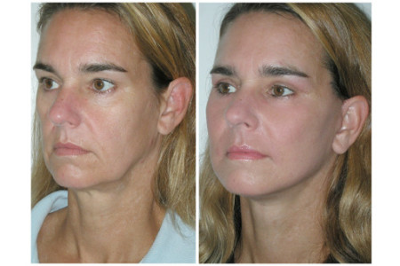 PDO Thread Lift Treatment in West Palm Beach Florida by Dr  Ronald