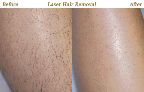 Best Laser Hair Removal Treatment In Palm Beach Florida