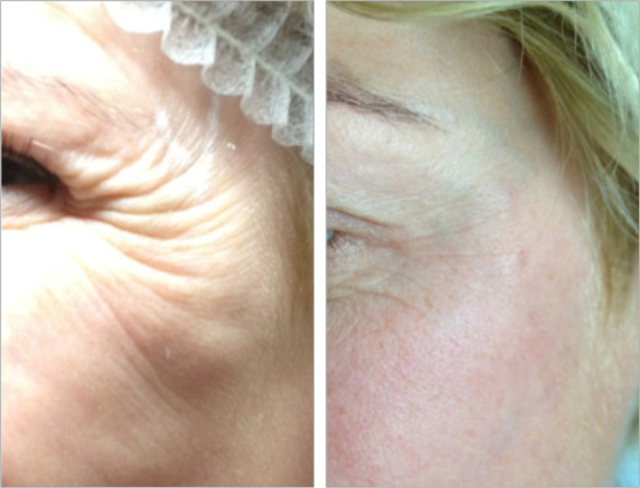 PDO Thread Lift Treatment in West Palm Beach Florida by Dr
