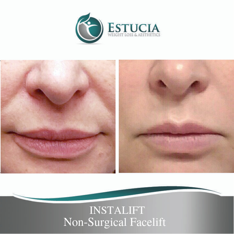 Estucia-Instlift-Threadlift-Procedure-South Florida-Palm Beach - Before and after