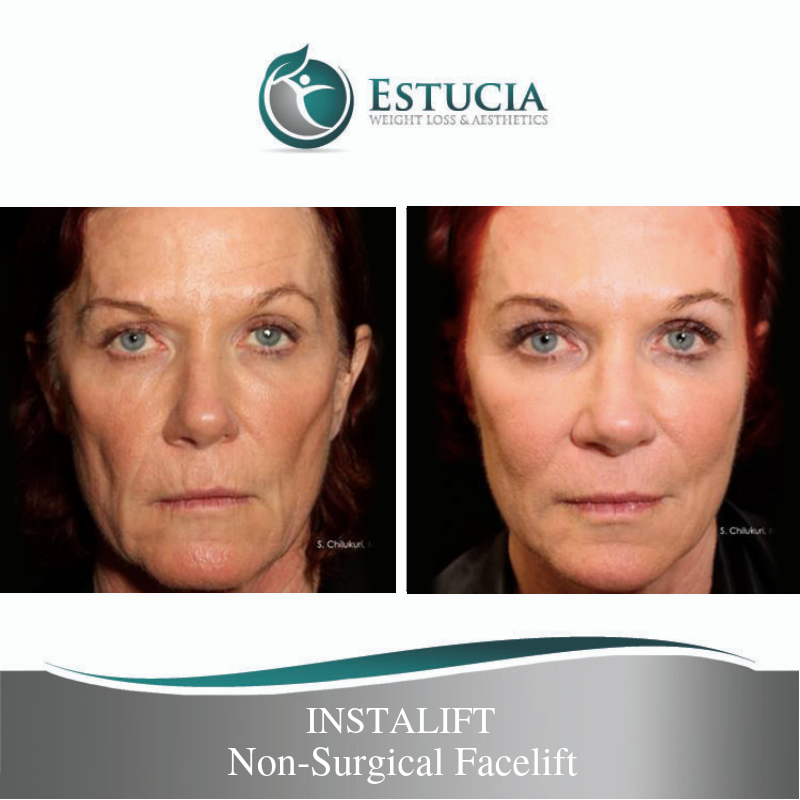 Estucia-Instlift-Threadlift-Procedure-South Florida-Palm Beach - Before and after3